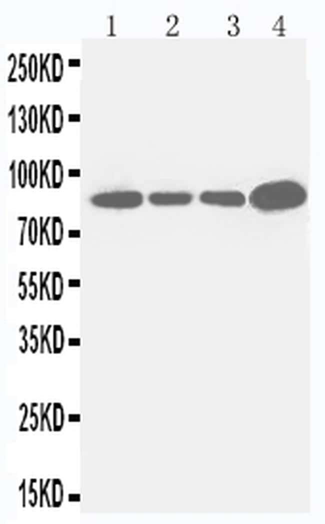 CD61 (Integrin beta 3) Antibody in Western Blot (WB)