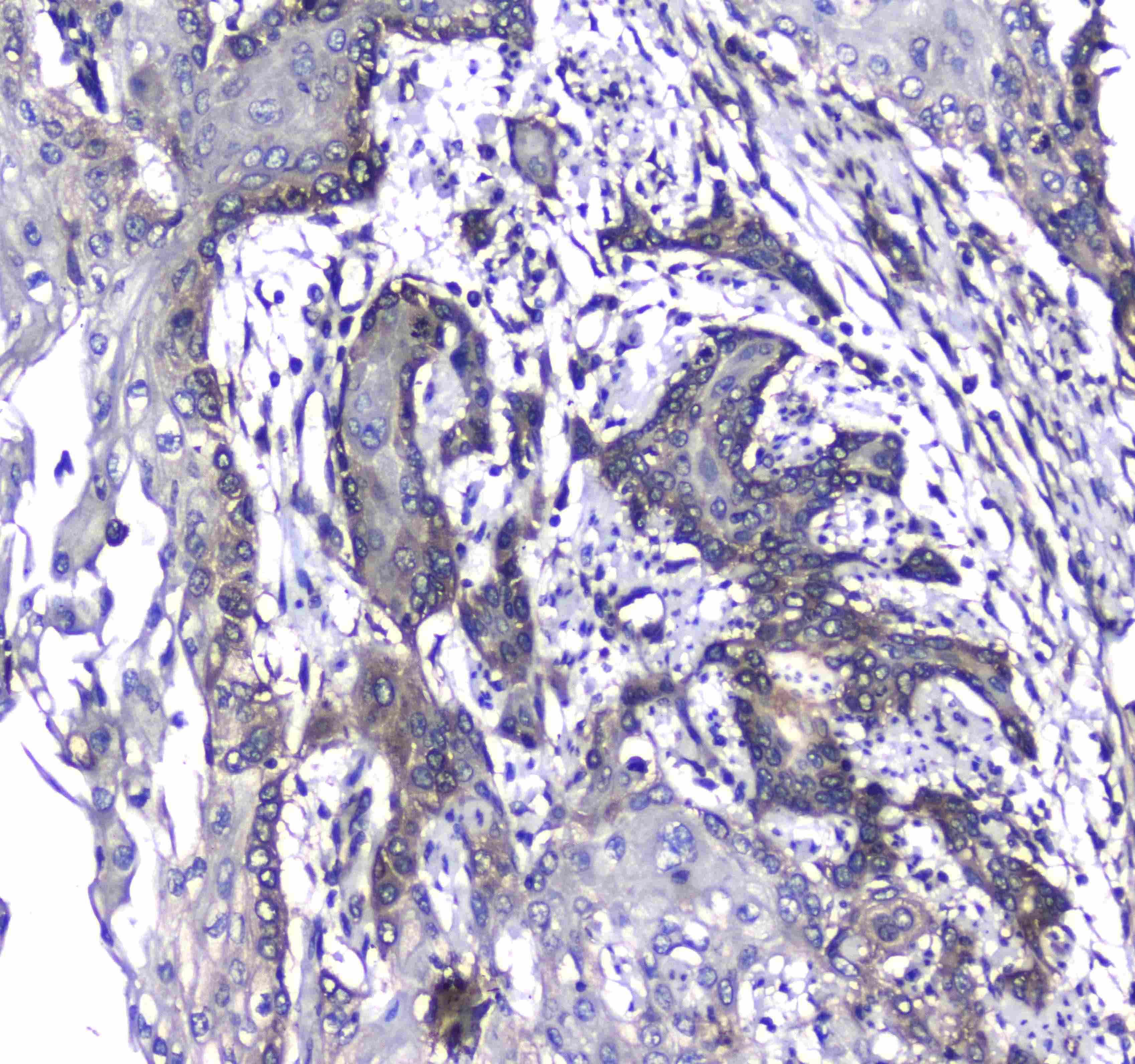 CD171 (L1CAM) Antibody in Immunohistochemistry (Paraffin) (IHC (P))