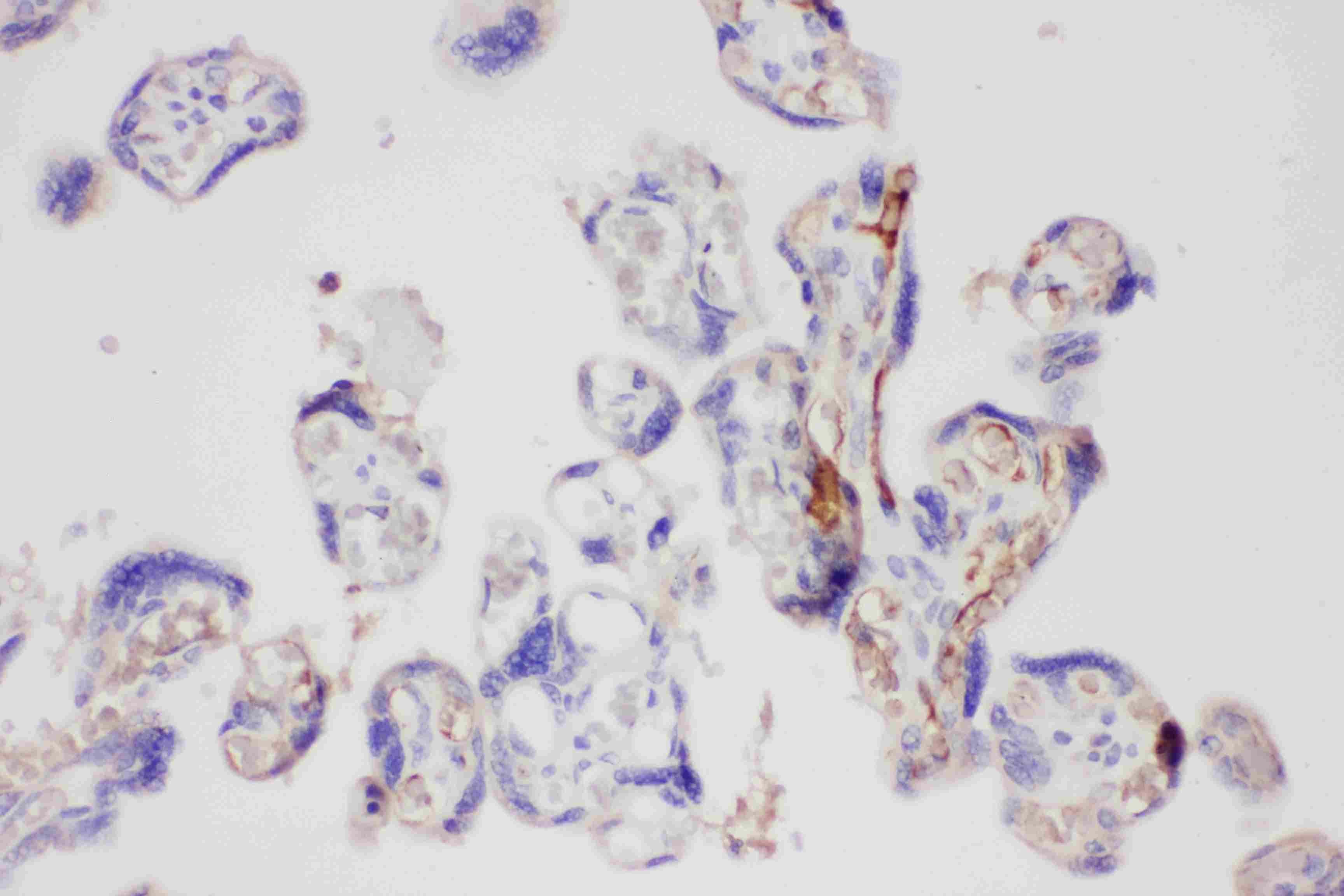 Galectin 3 Antibody in Immunohistochemistry (Paraffin) (IHC (P))