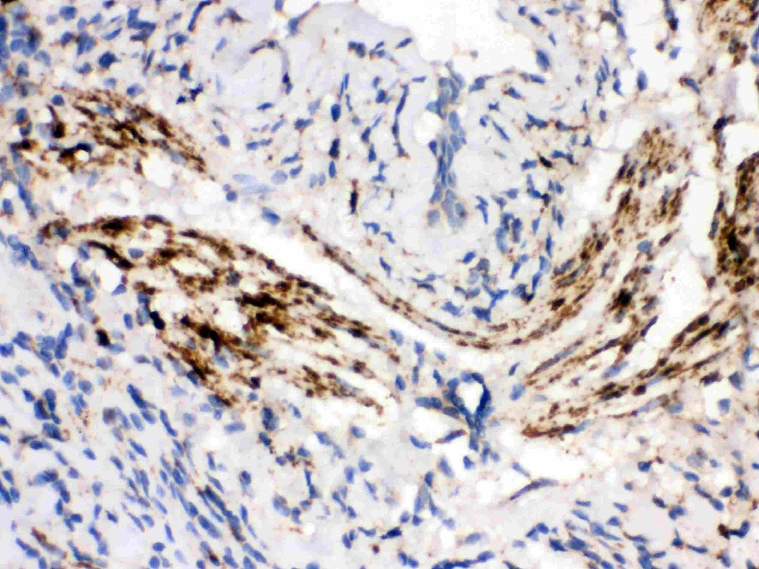 MAOB Antibody in Immunohistochemistry (Paraffin) (IHC (P))