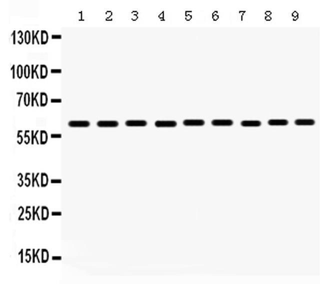MAOB Antibody in Western Blot (WB)
