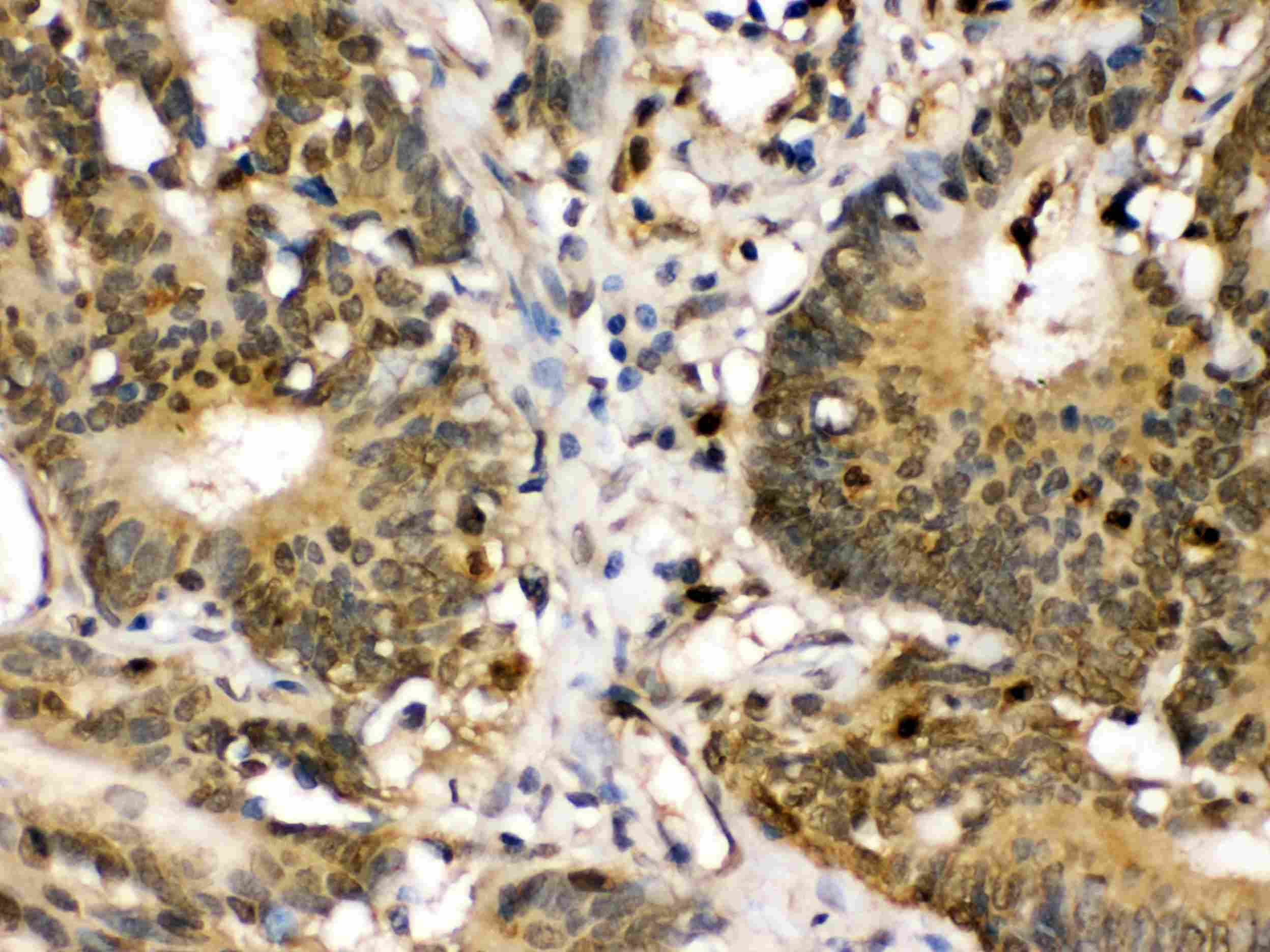 MEK3 Antibody in Immunohistochemistry (Paraffin) (IHC (P))