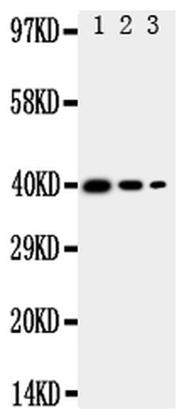 MBD4 Antibody in Western Blot (WB)