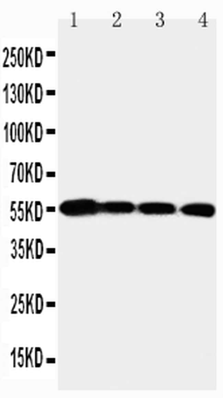 MMP24 Antibody in Western Blot (WB)
