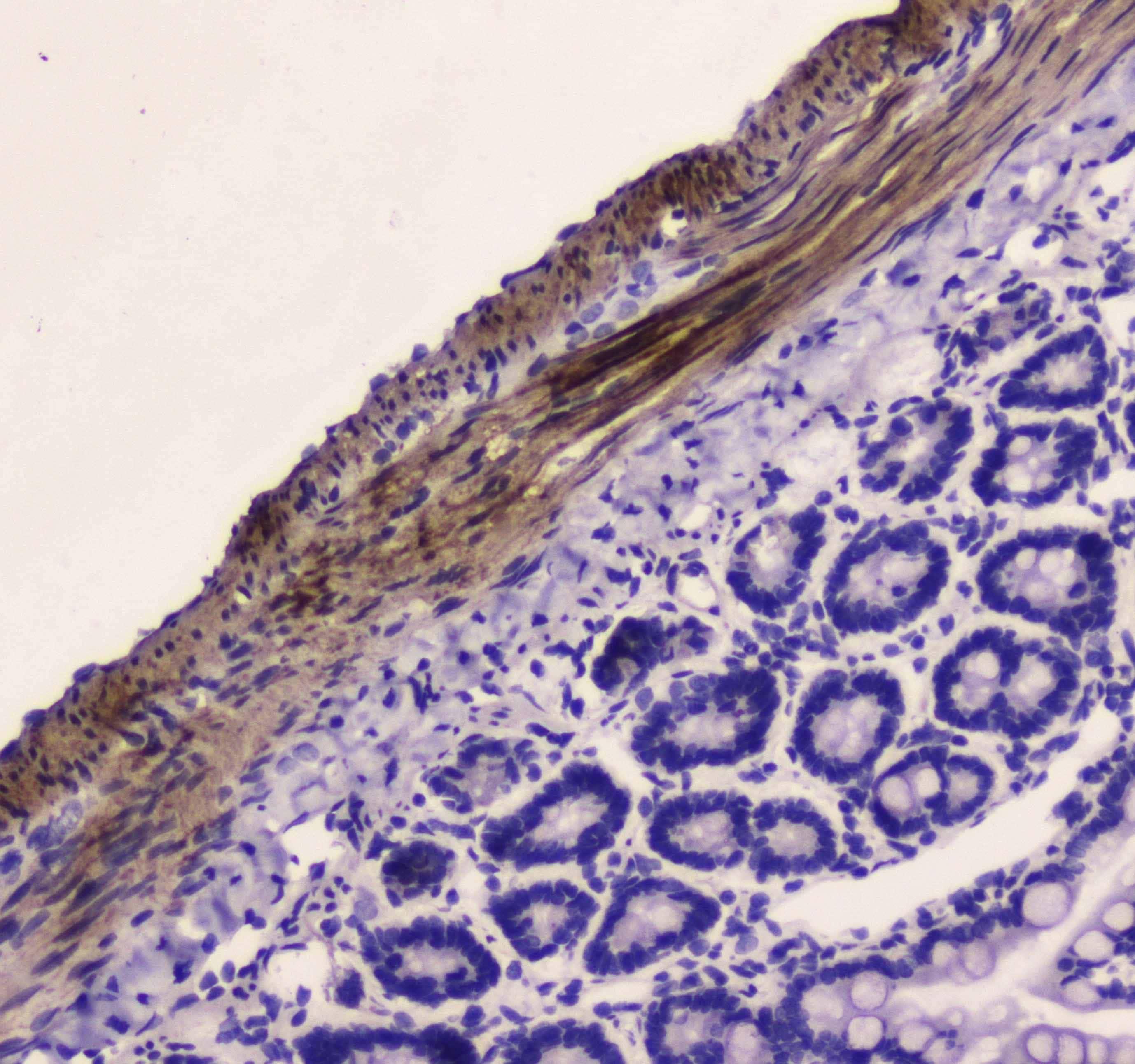 MYLK Antibody in Immunohistochemistry (Paraffin) (IHC (P))
