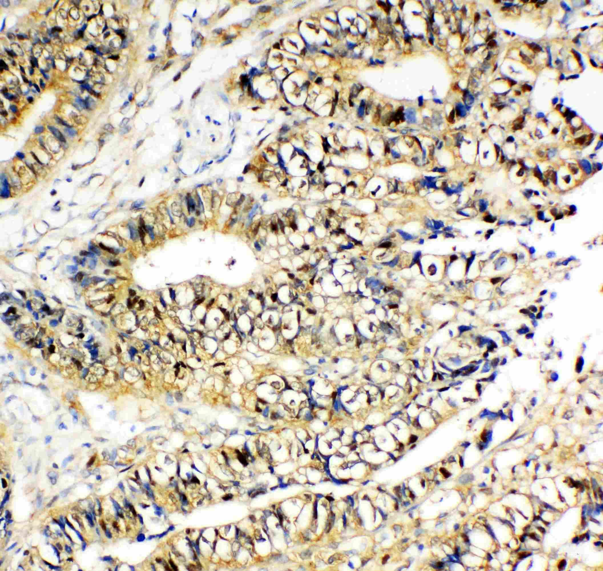NME2 Antibody in Immunohistochemistry (Paraffin) (IHC (P))