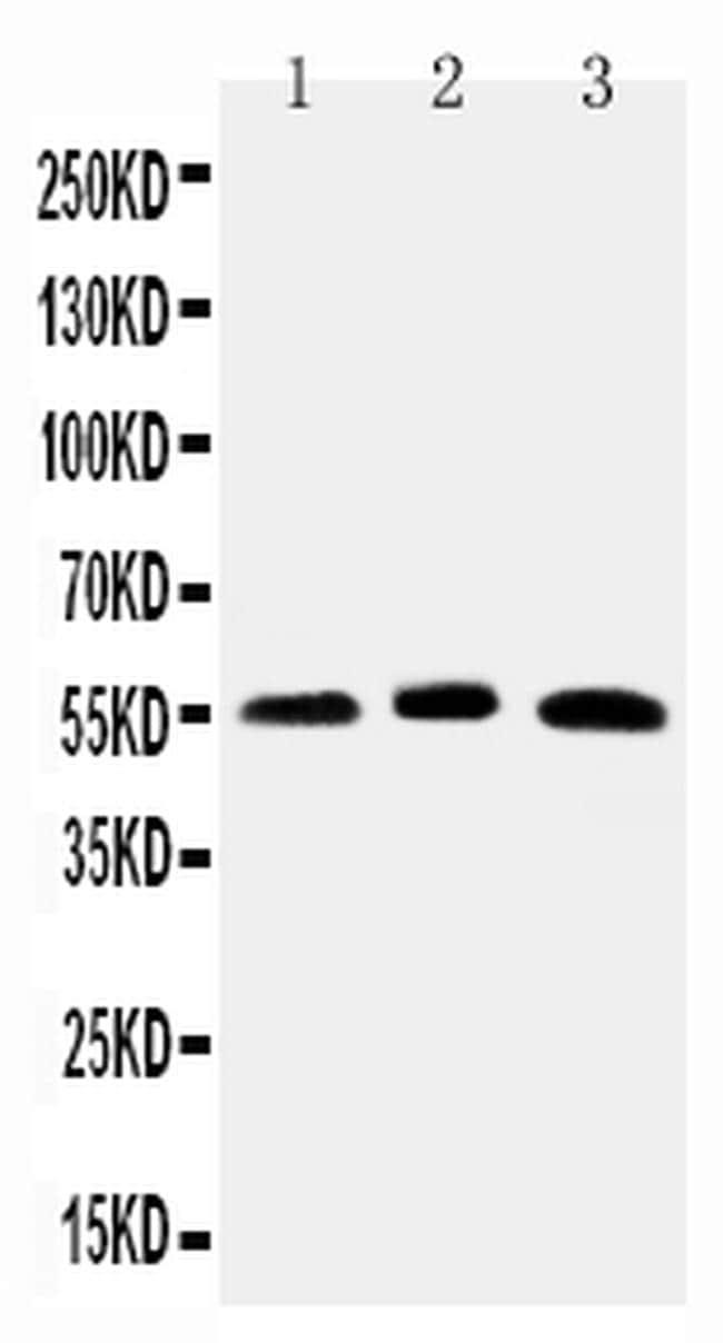 HNF6 Antibody in Western Blot (WB)