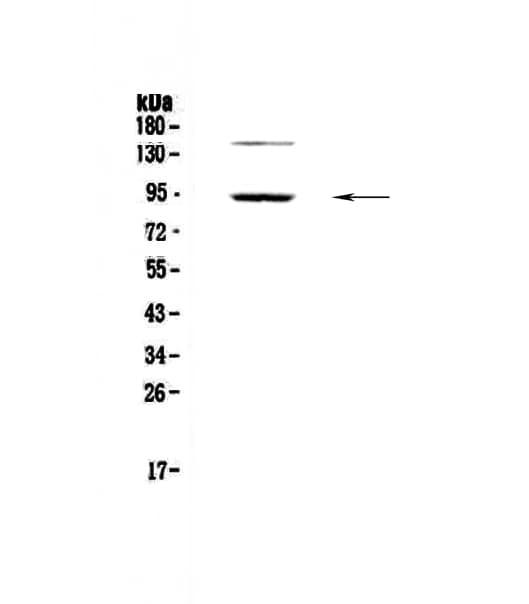 PDE4D Antibody in Western Blot (WB)
