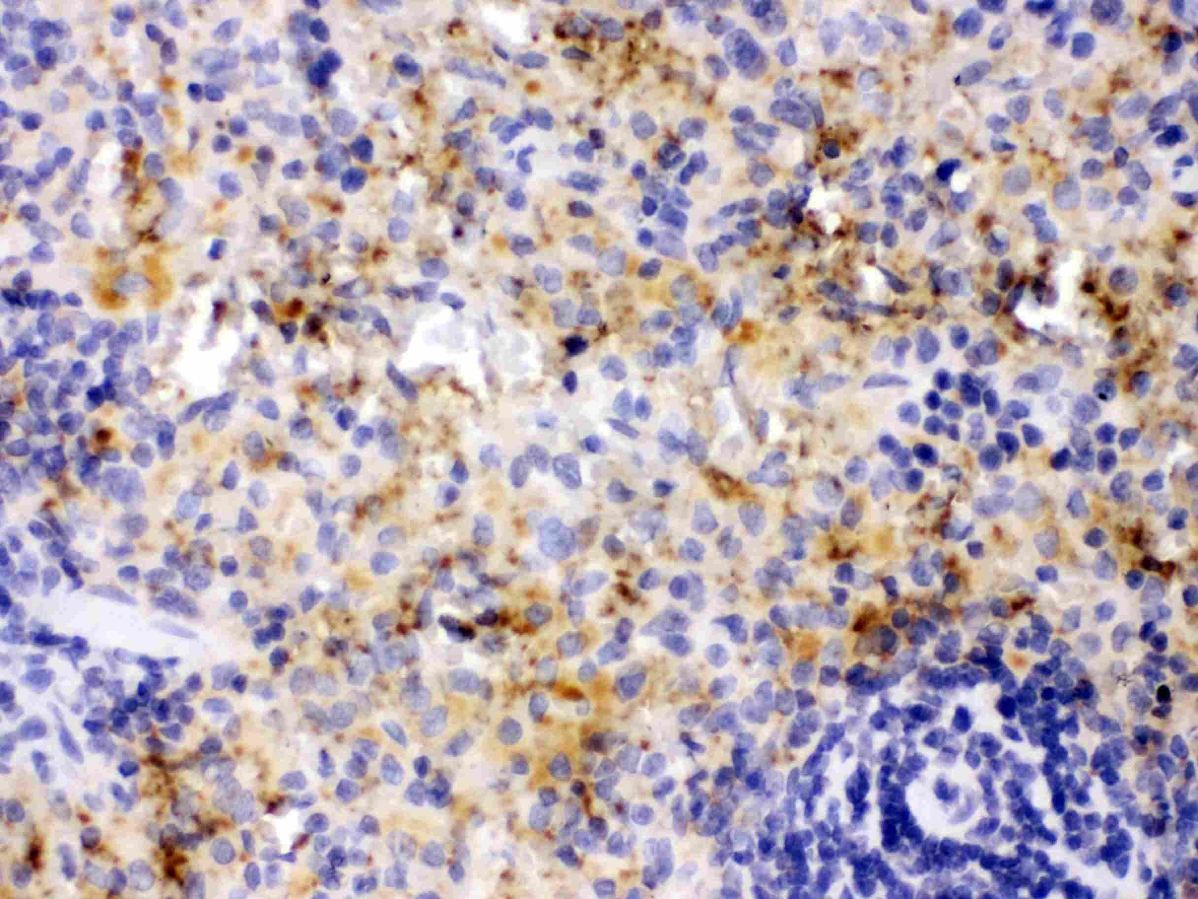 PF4 Antibody in Immunohistochemistry (Paraffin) (IHC (P))