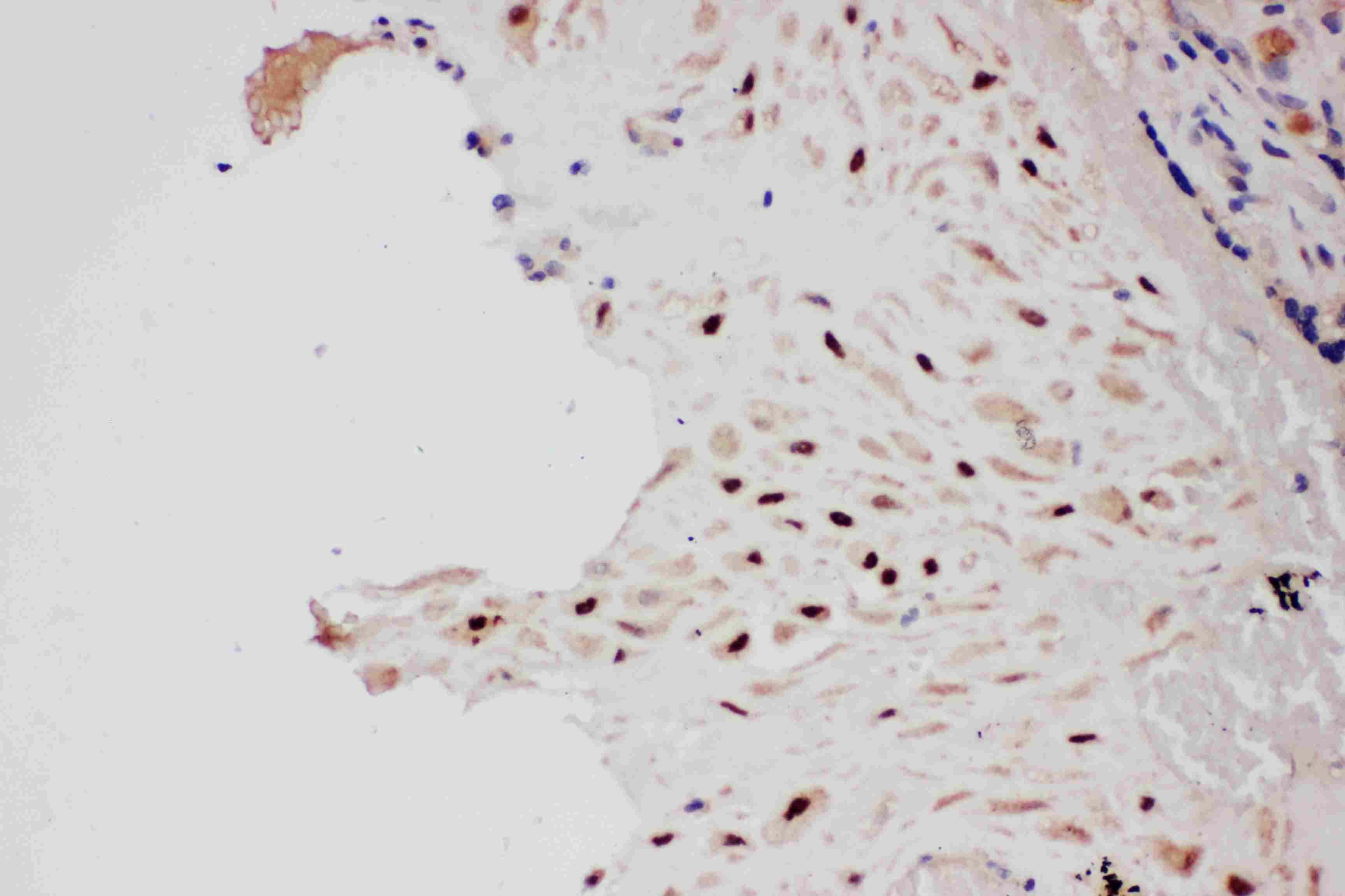 PIAS1 Antibody in Immunohistochemistry (Paraffin) (IHC (P))