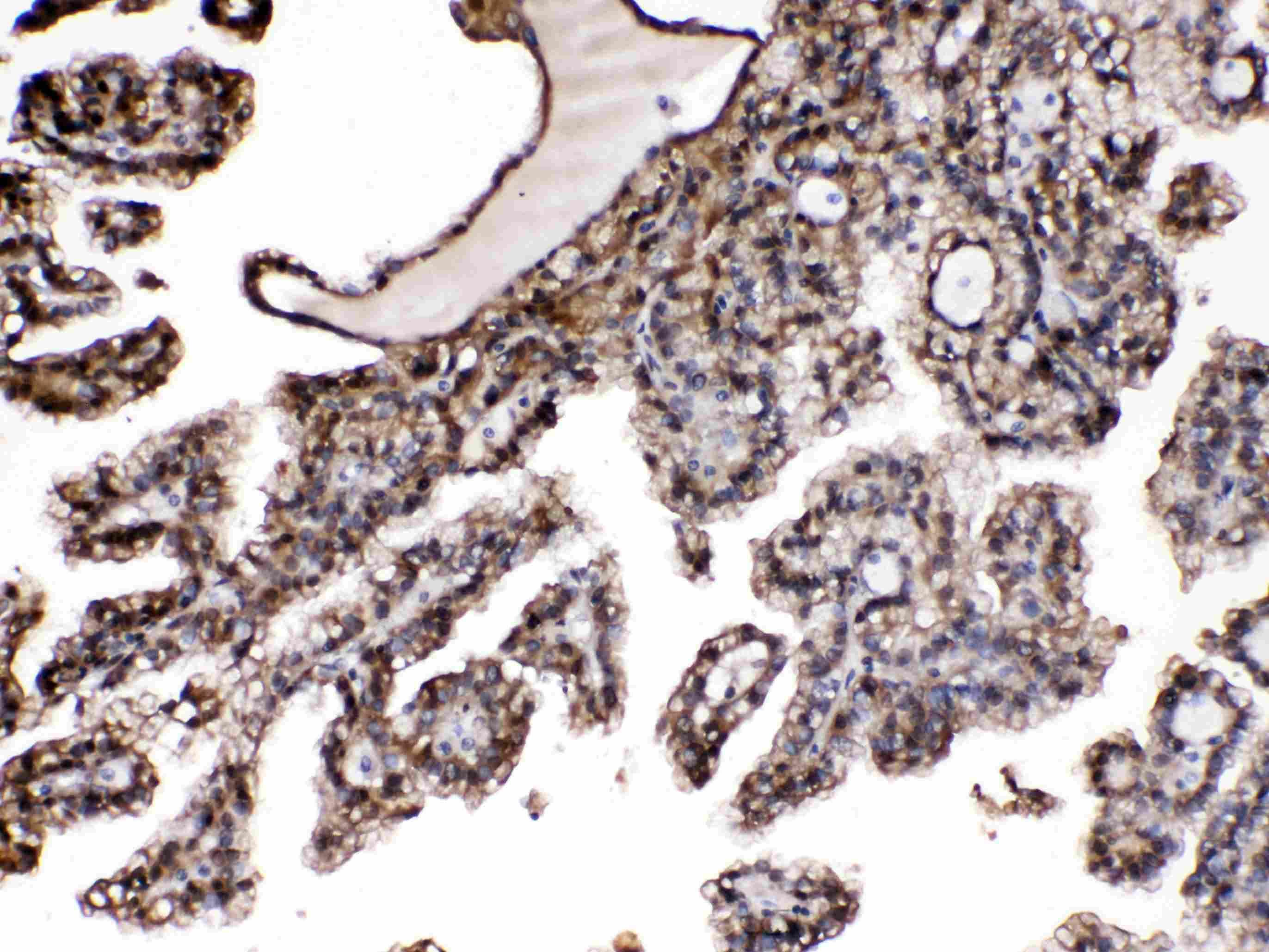 PNP Antibody in Immunohistochemistry (Paraffin) (IHC (P))