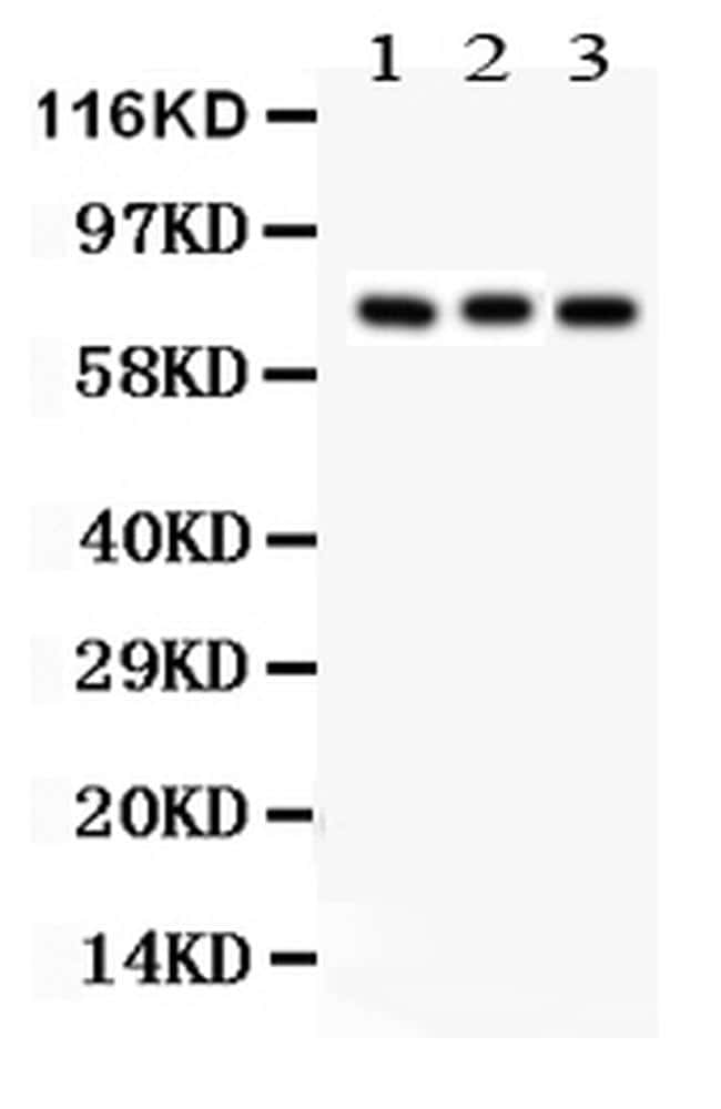 PKC beta-1 Antibody in Western Blot (WB)