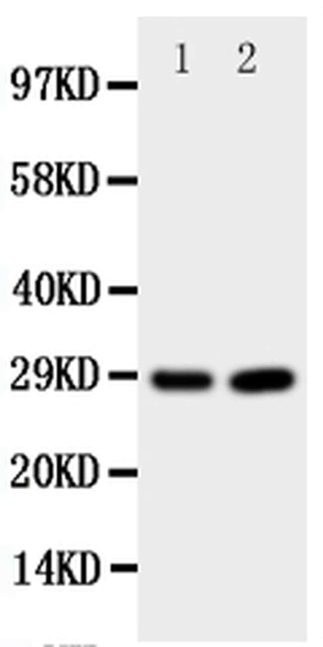 PrP Antibody in Western Blot (WB)