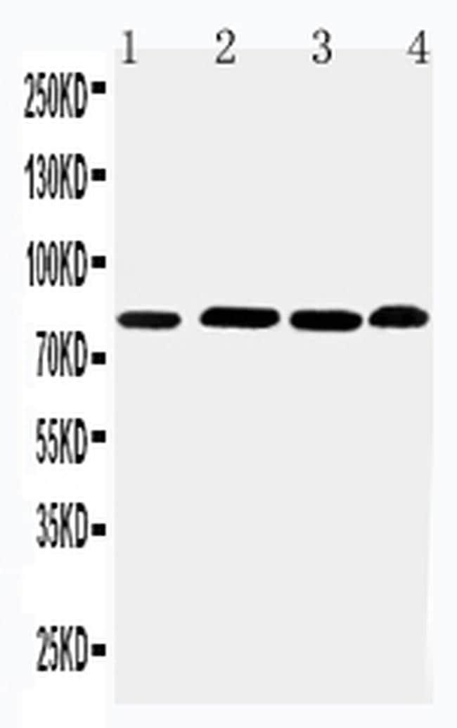 PROX1 Antibody in Western Blot (WB)