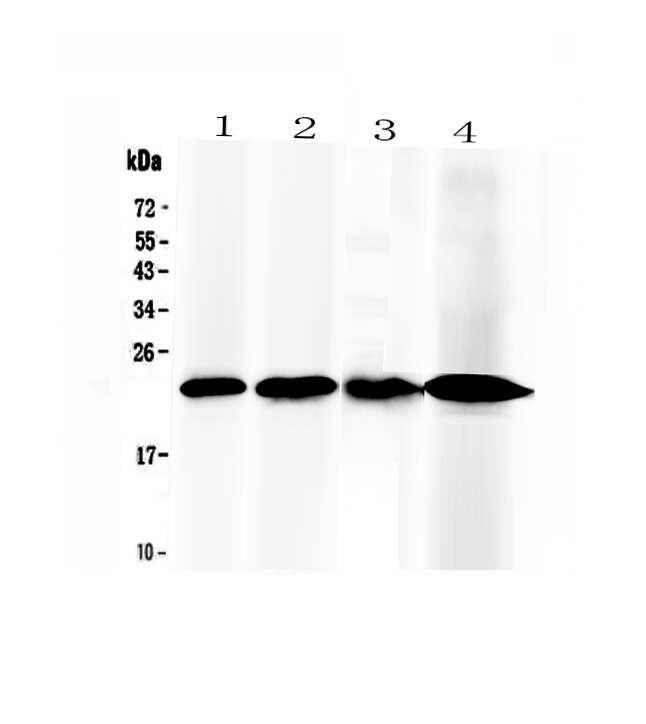 RBP4 Antibody in Western Blot (WB)