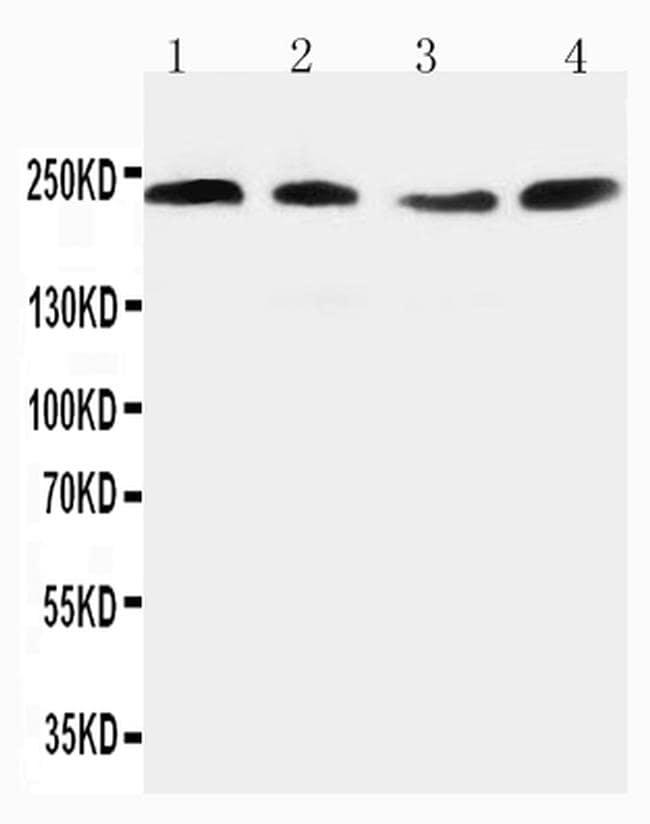 Nogo-A Antibody in Western Blot (WB)