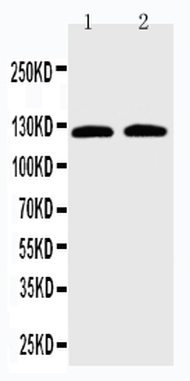 SLC12A6 Antibody in Western Blot (WB)