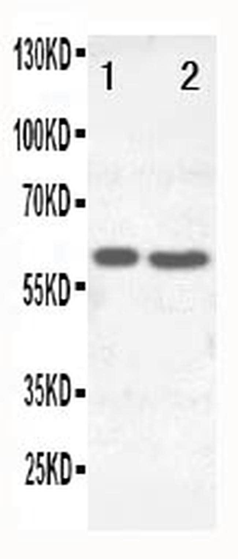 SLC22A6 Antibody in Western Blot (WB)