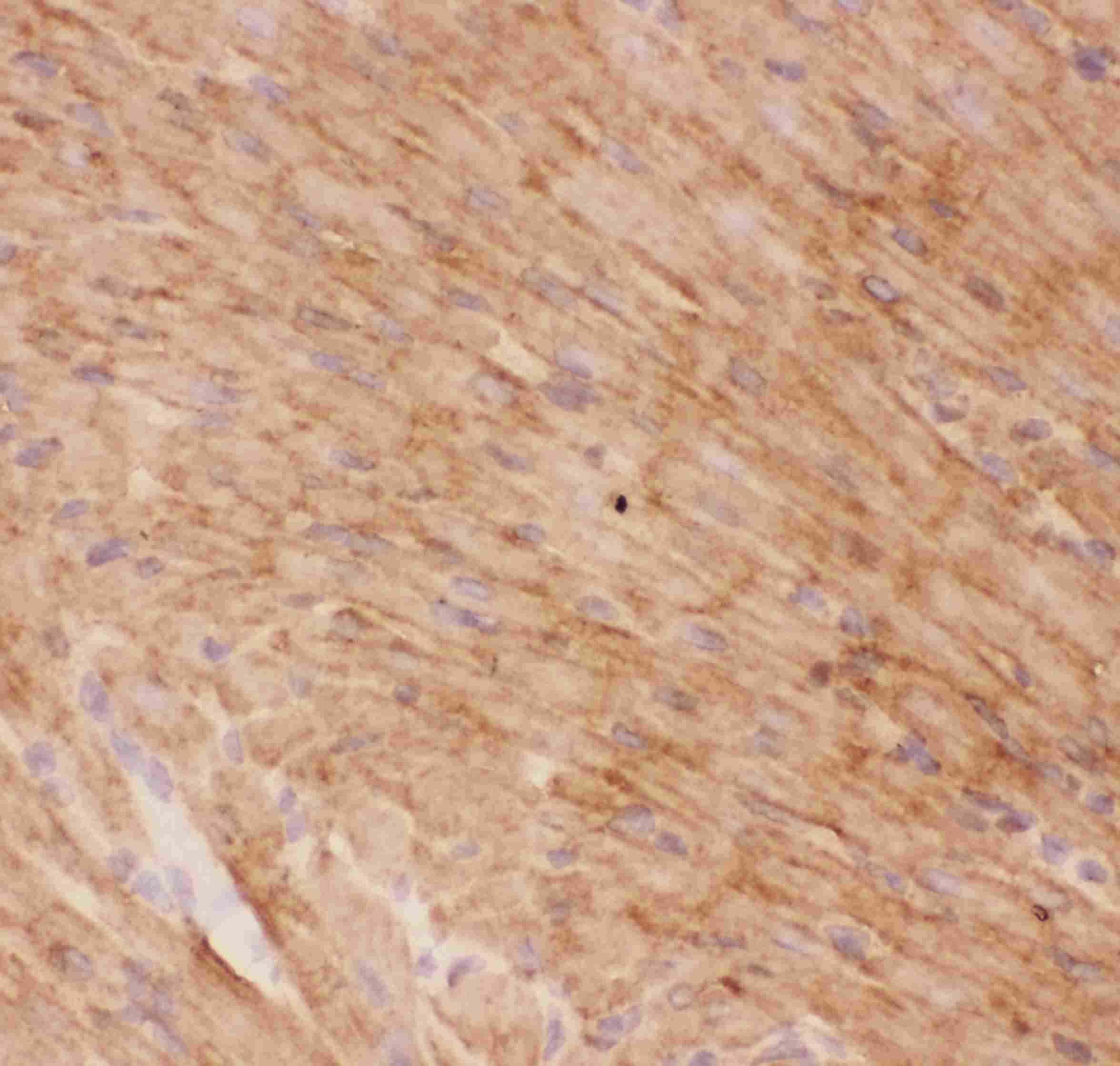 GLUT4 Antibody in Immunohistochemistry (IHC)