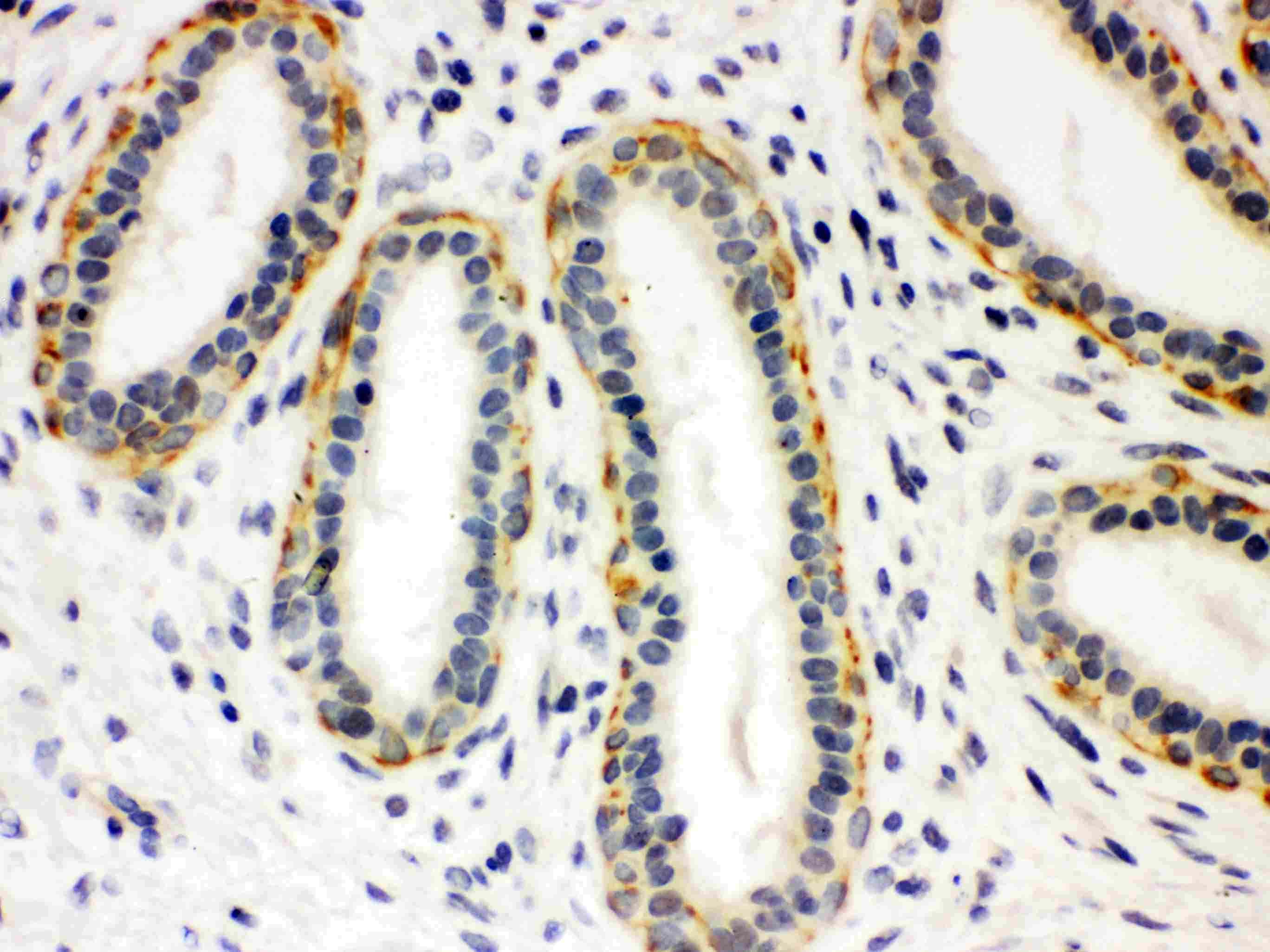 SLC6A4 Antibody in Immunohistochemistry (Paraffin) (IHC (P))