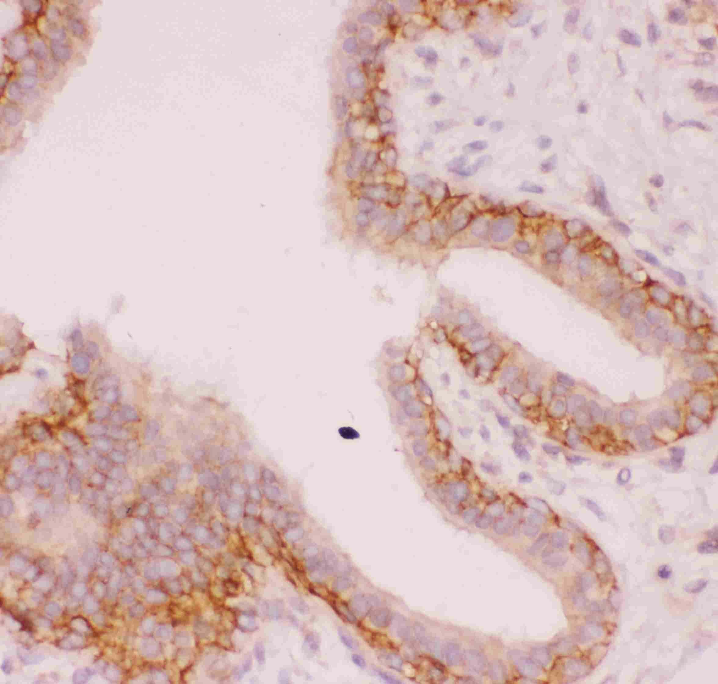 Nhe-1 Antibody in Immunohistochemistry (Paraffin) (IHC (P))