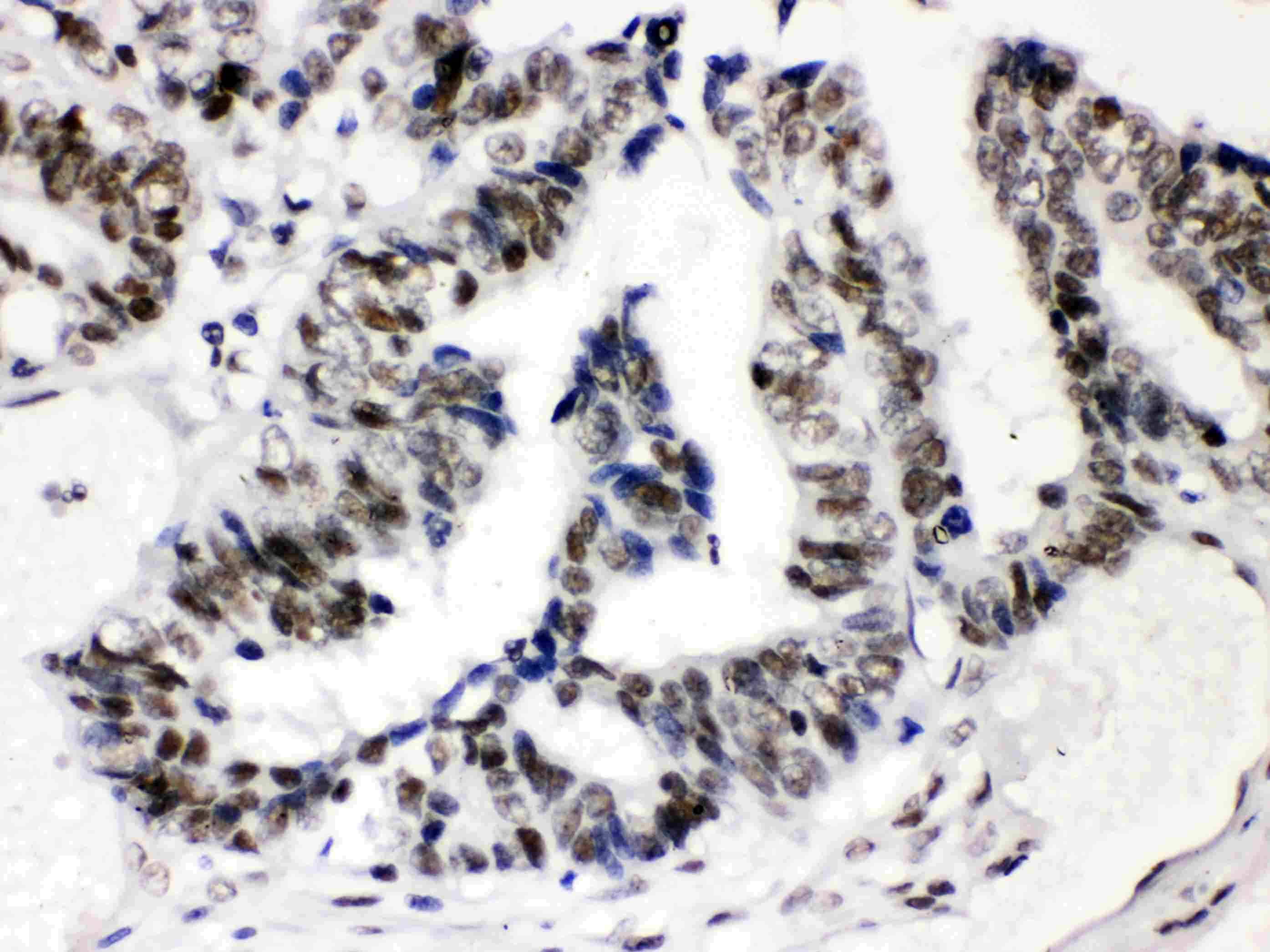 SP3 Antibody in Immunohistochemistry (Paraffin) (IHC (P))