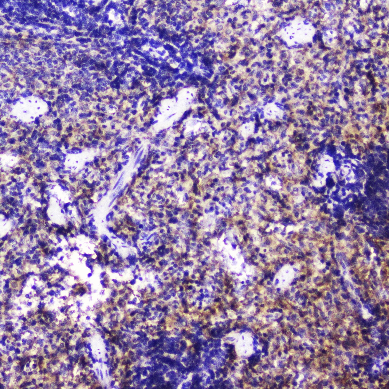 Talin 1 Antibody in Immunohistochemistry (Paraffin) (IHC (P))