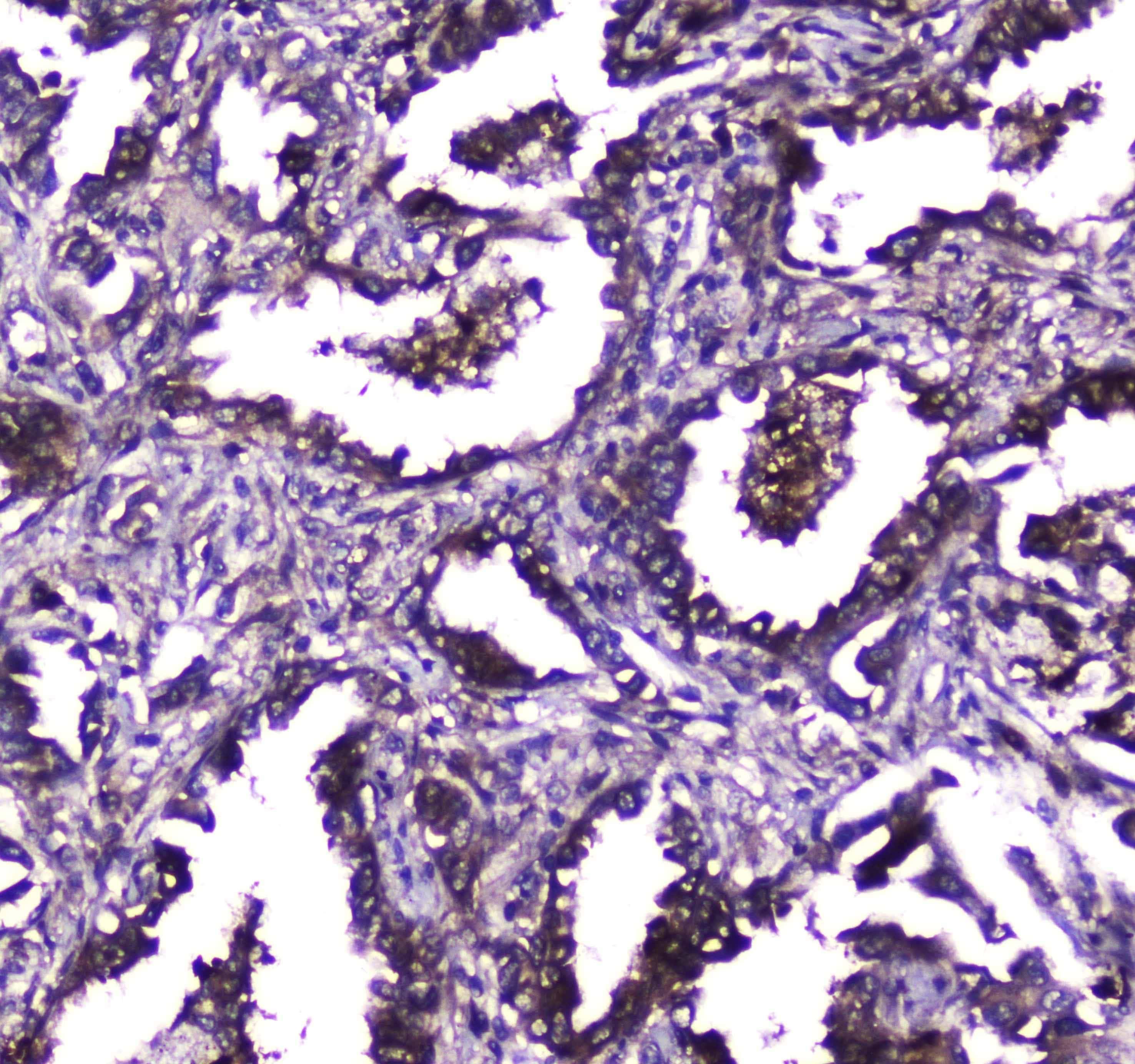 TLR1 Antibody in Immunohistochemistry (Paraffin) (IHC (P))