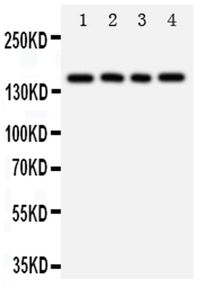 Tenascin R Antibody in Western Blot (WB)