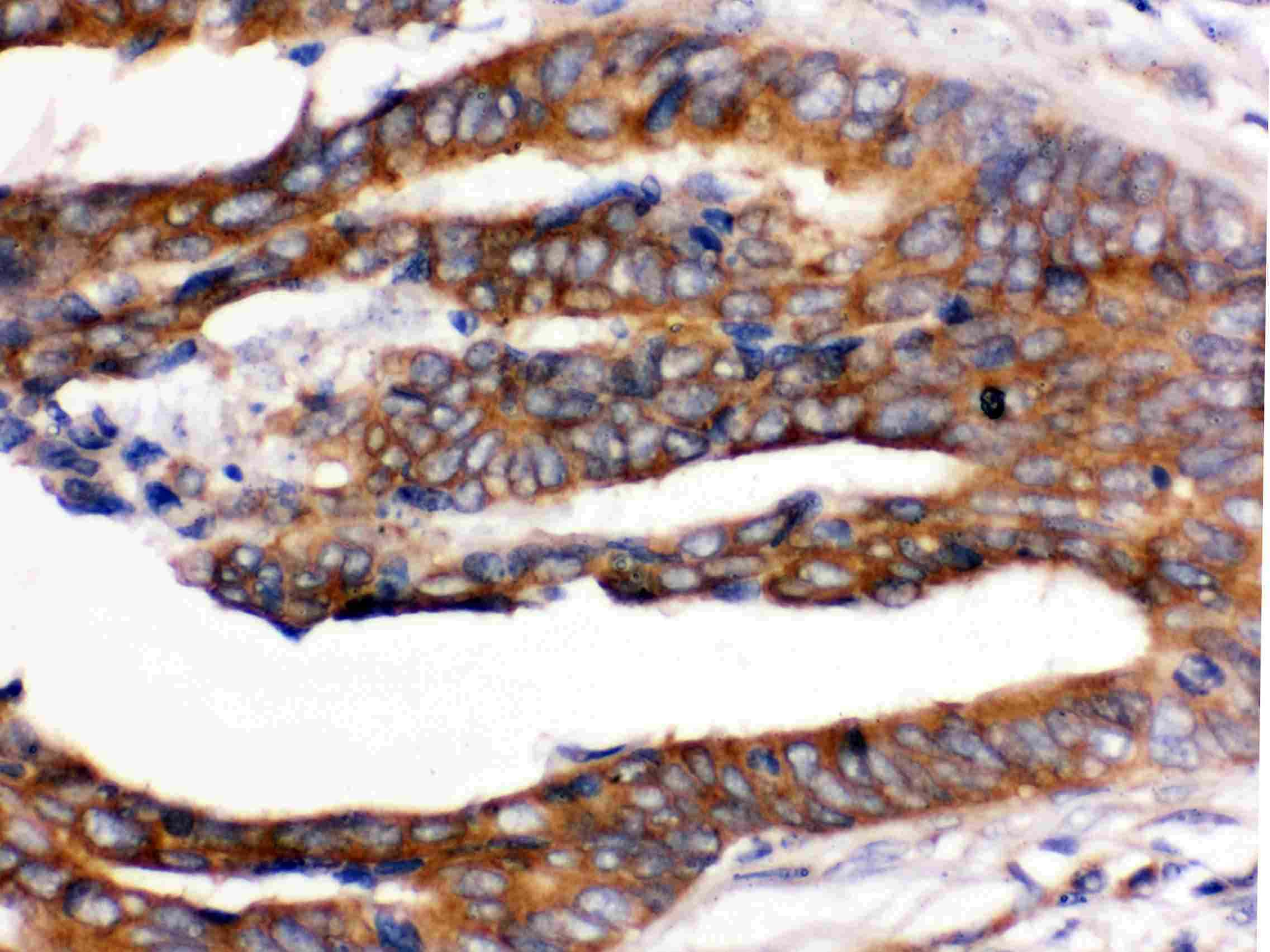 UPF1 Antibody in Immunohistochemistry (Paraffin) (IHC (P))