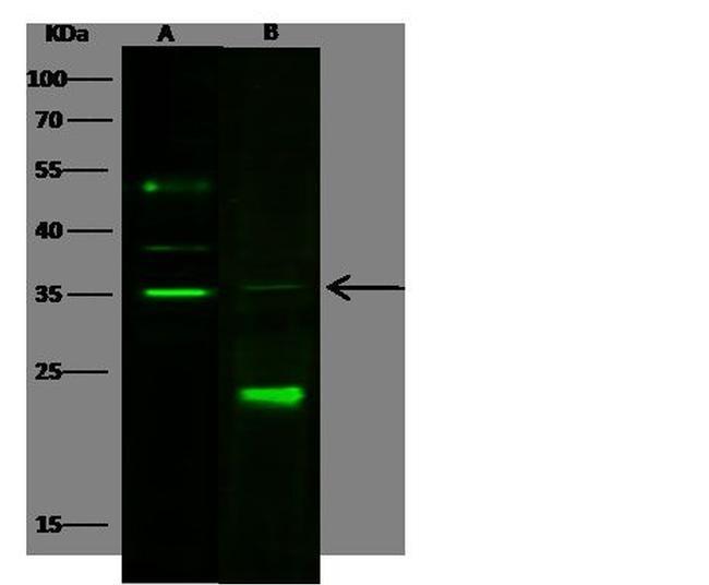 Carbonic Anhydrase VA Antibody in Western Blot (WB)