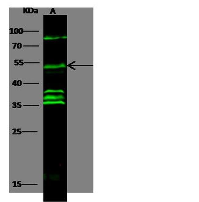 Cyclin E Antibody in Western Blot (WB)
