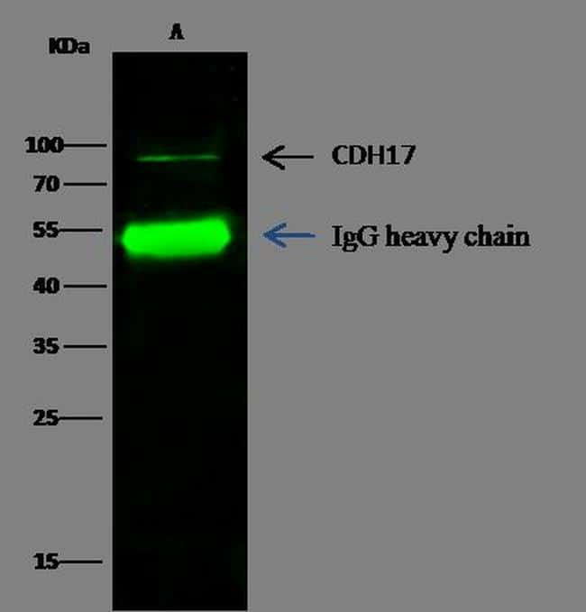 CDH17 Antibody in Immunoprecipitation (IP)
