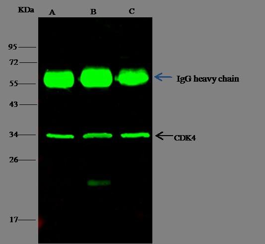 CDK4 Antibody in Immunoprecipitation (IP)