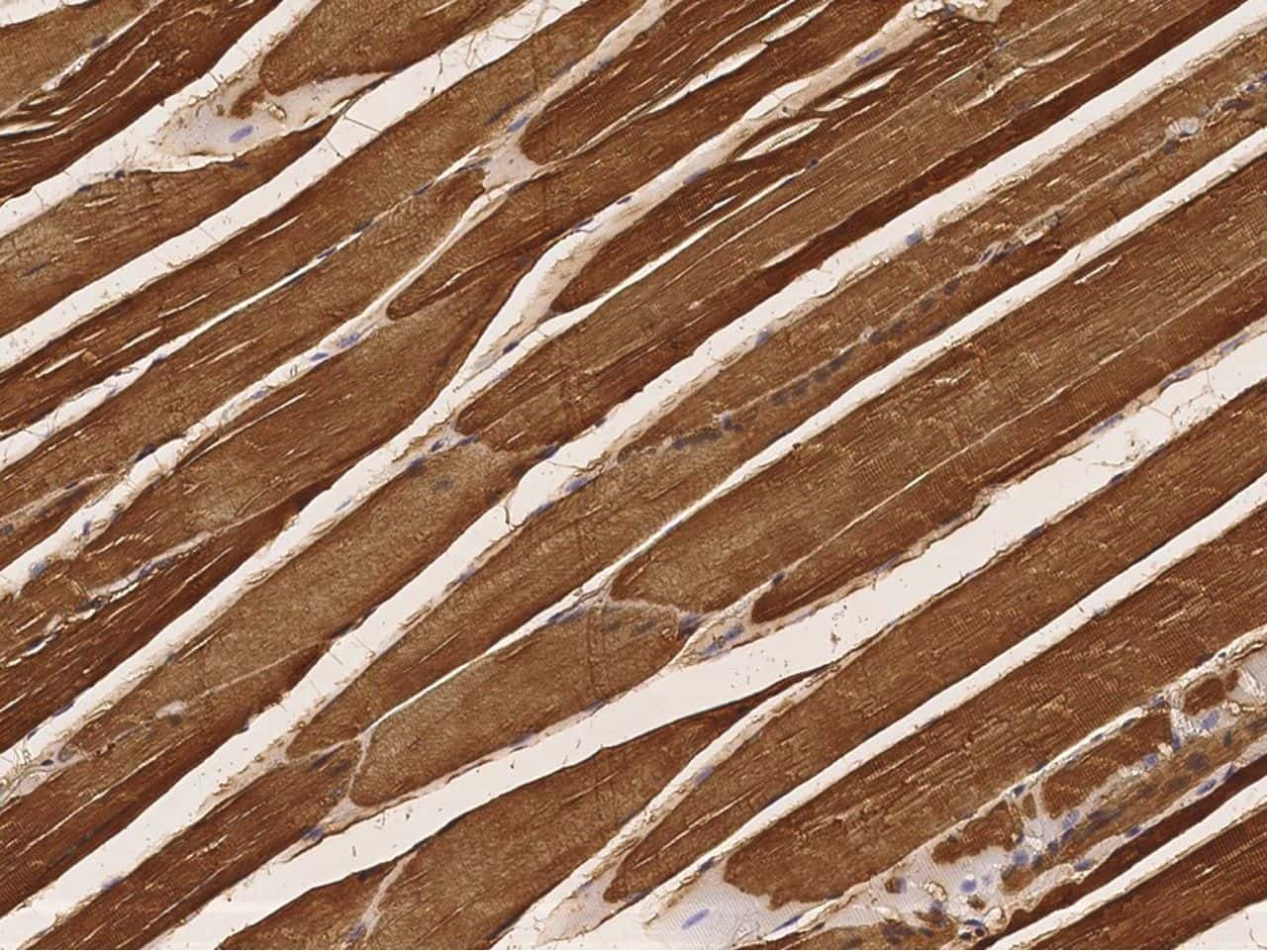 Creatine Kinase MB Antibody in Immunohistochemistry (Paraffin) (IHC (P))
