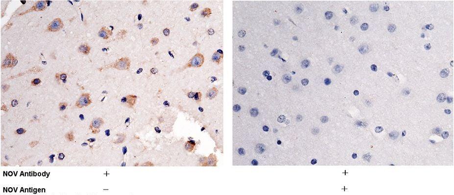 NOV Antibody in Immunohistochemistry (Paraffin) (IHC (P))