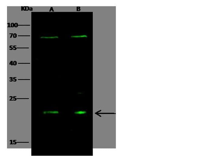 Oncostatin M Antibody in Western Blot (WB)