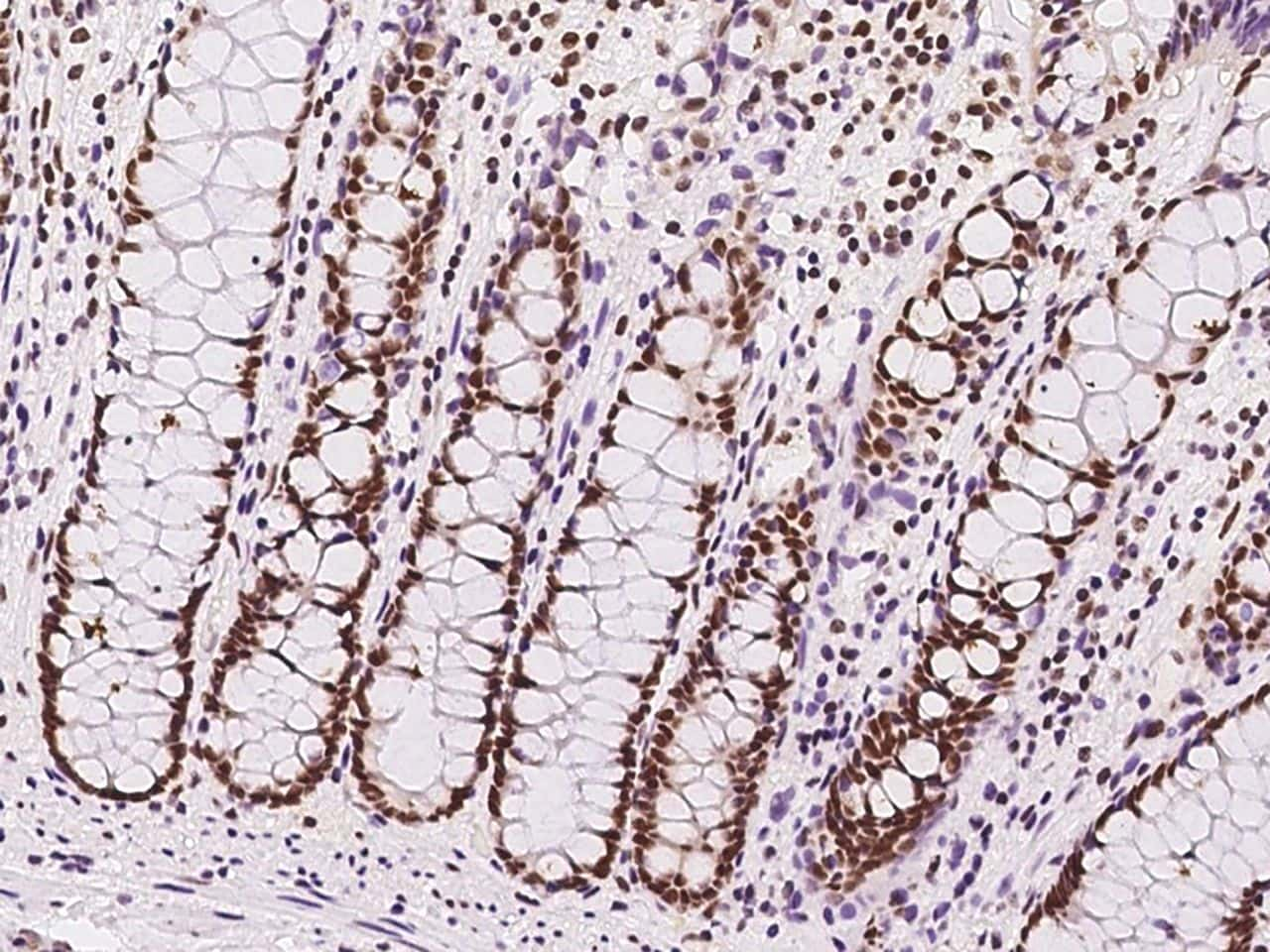 SIN3A Antibody in Immunohistochemistry (Paraffin) (IHC (P))