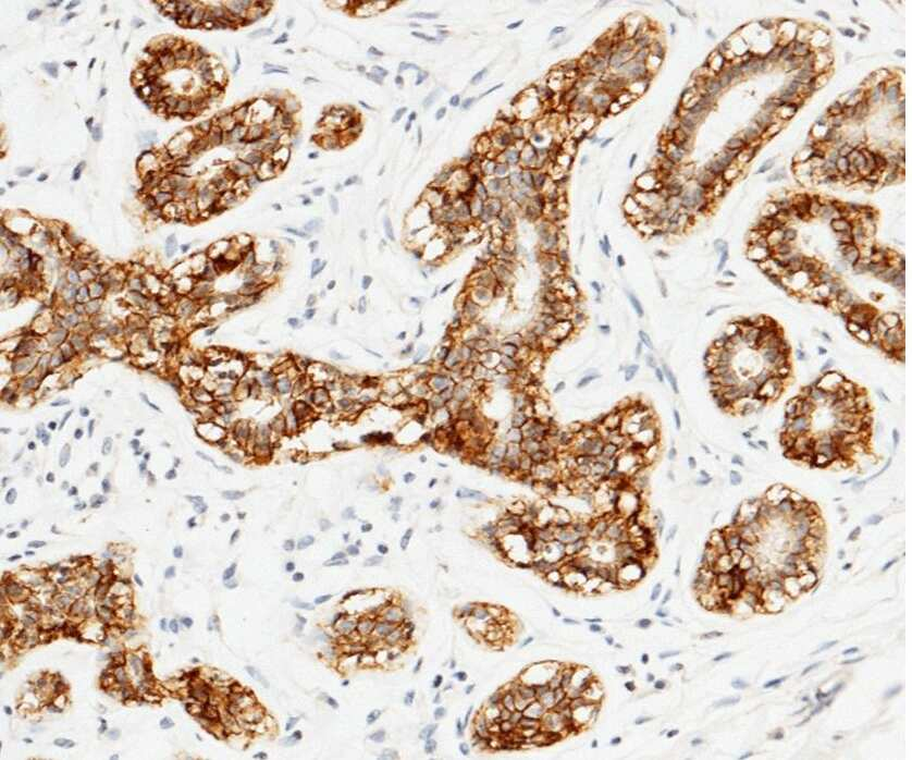 TROP2 Antibody in Immunohistochemistry (Paraffin) (IHC (P))