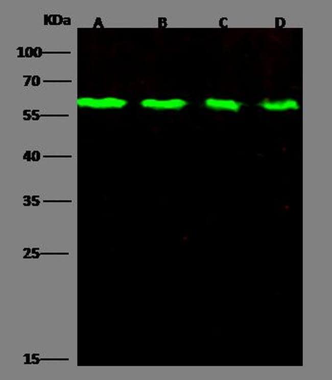 DR6 Antibody in Western Blot (WB)