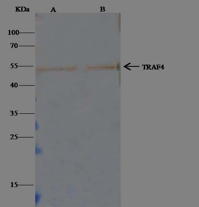 TRAF4 Antibody in Immunoprecipitation (IP)