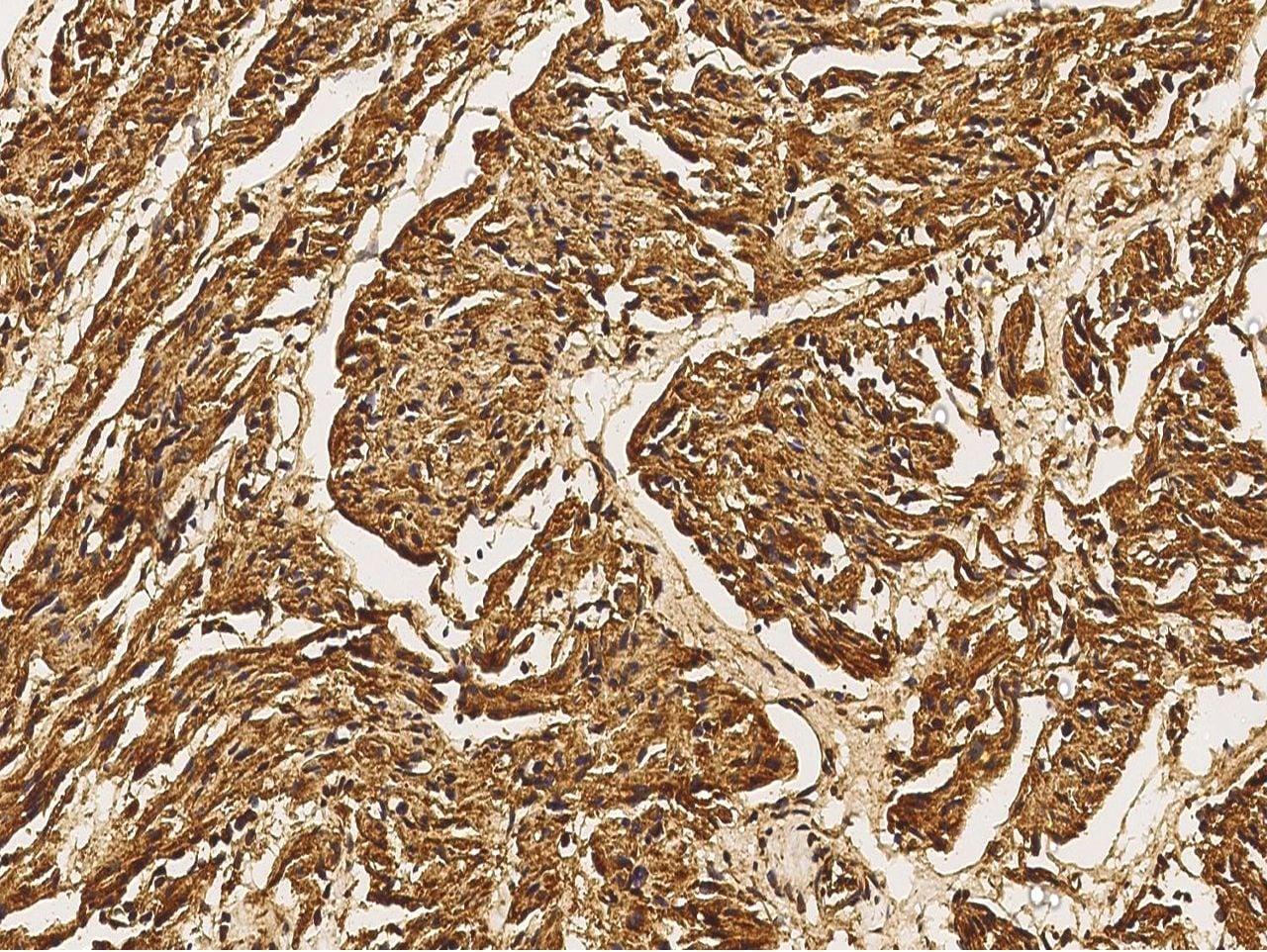 MEK5 Antibody in Immunohistochemistry (Paraffin) (IHC (P))