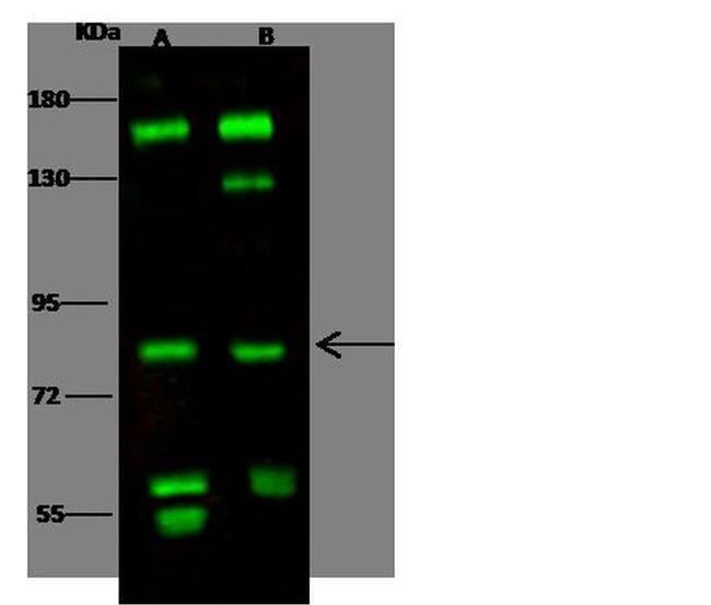 RSK1 Antibody in Western Blot (WB)