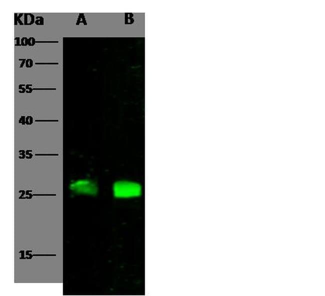 CTLA-4 Antibody in Western Blot (WB)