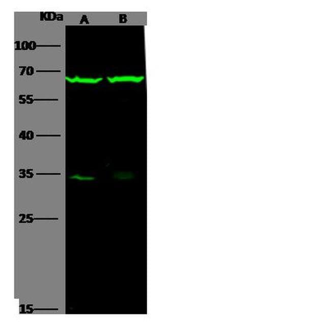 IL-6 Receptor Antibody in Western Blot (WB)