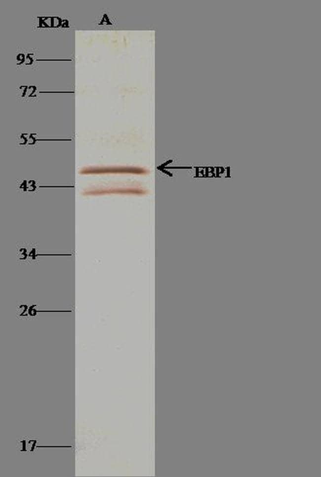 MYOD Antibody in Immunoprecipitation (IP)