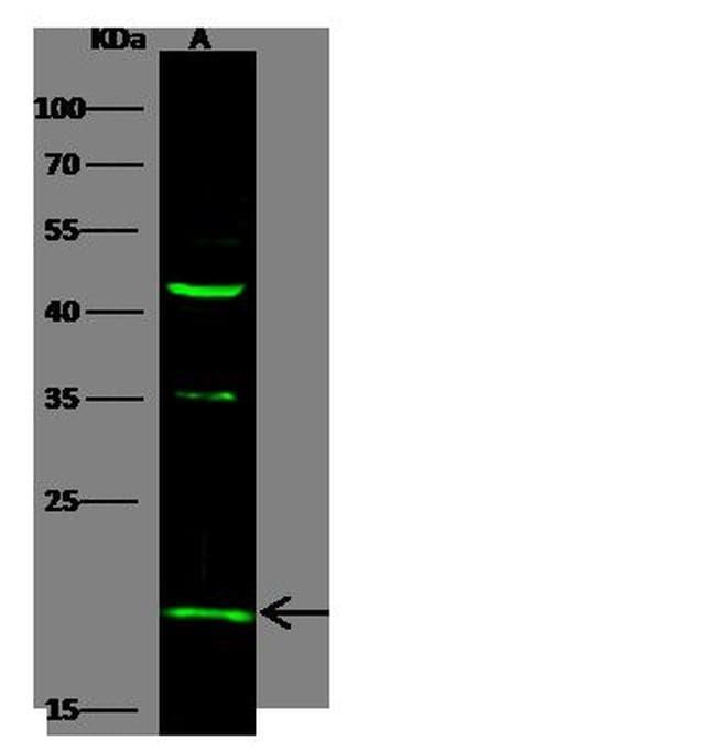 IFNA5 Antibody in Western Blot (WB)