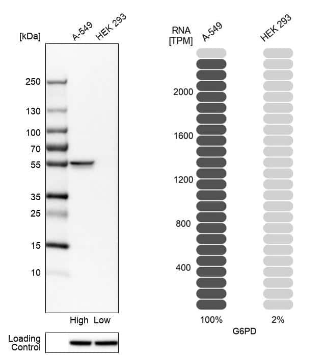 G6PD Antibody in Relative expression