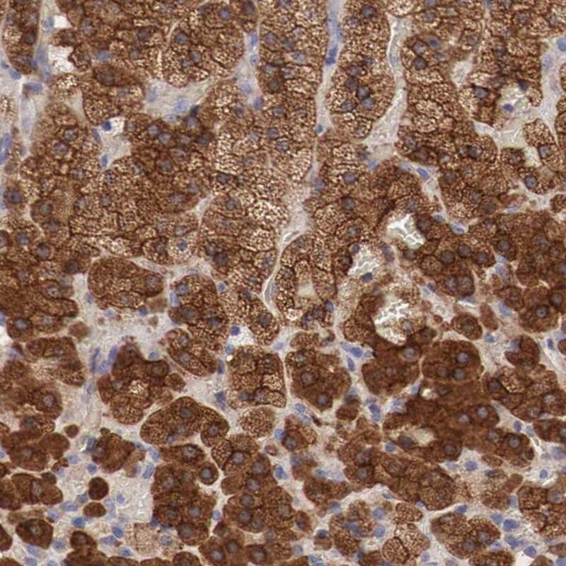 Radixin Antibody in Immunohistochemistry (IHC)