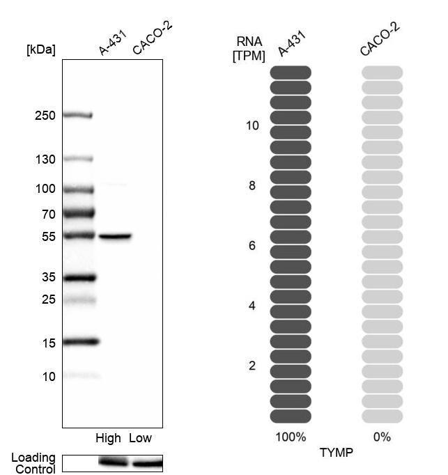Thymidine Phosphorylase Antibody in Western Blot (WB)